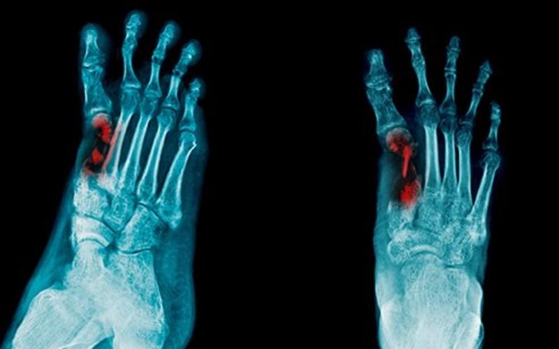 kelainan pada tulang - Osteomyelitis