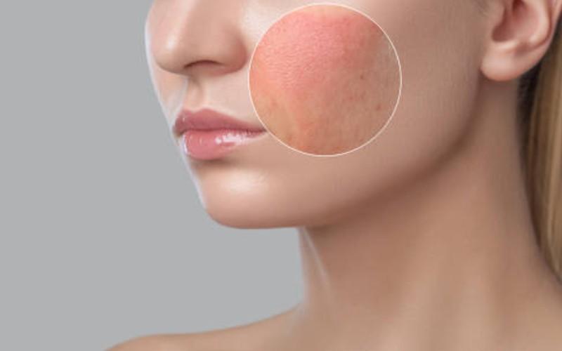 manfaat air mawar - peradangan pada kulit